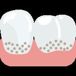 periodontitis enc